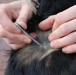 flea_eggs_in_human_hairs